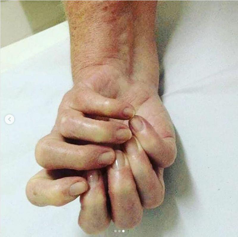 "Ulnar dimelia - bardzo rzadki ""syndrom lustrzanej ręki"""