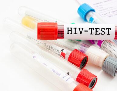 Czy pacjenci z HIV są bardziej narażeni na koronawirusa? Ekspert...