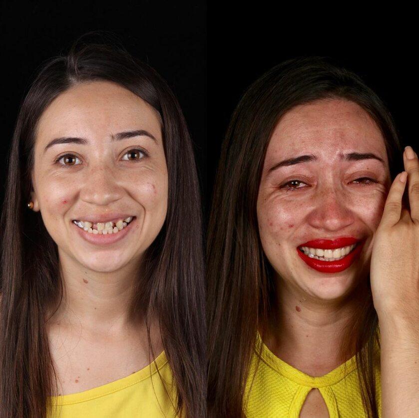 Zdjęcie wykonane przed i po leczeniu u Felipe Rossiego